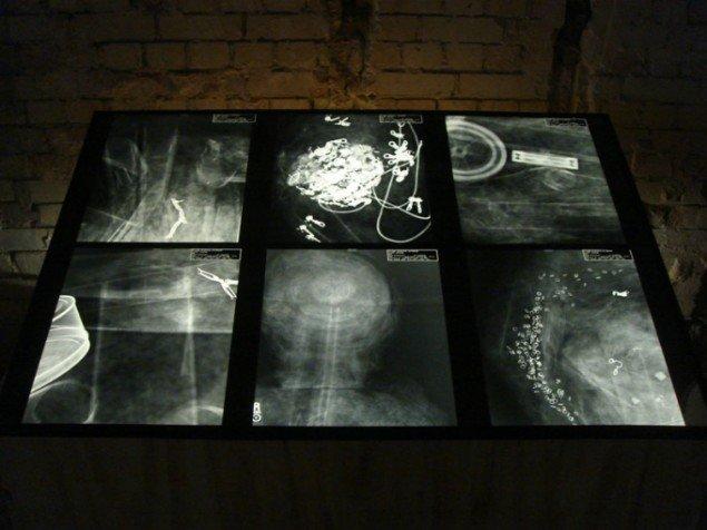 Museum of Everything, røntgenbilleder af Judith Scott's skulpturer som ofte opbyggedes omkring fundne objekter med sœrlig vœrdi for kunstneren, (Foto: Cecilie Gravesen)