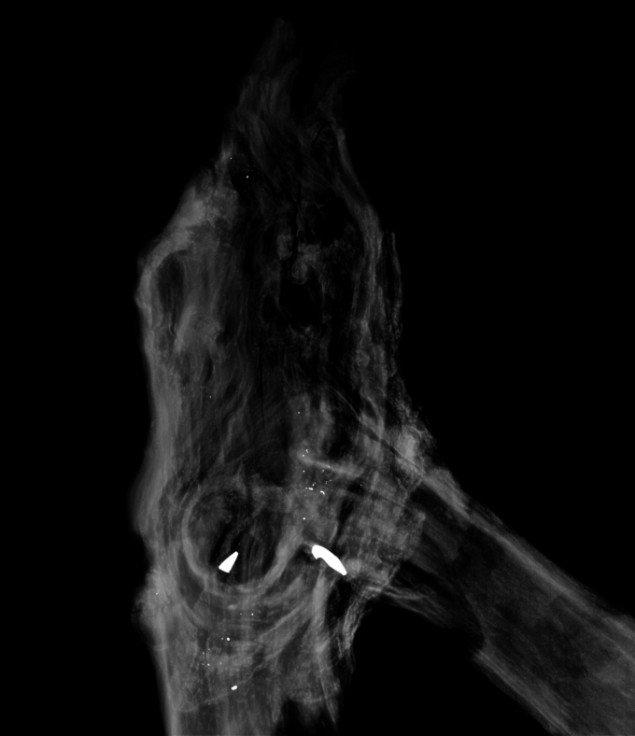 Morten Barker: X-ray 2013, 50x60 cm, 3 mm dibond.