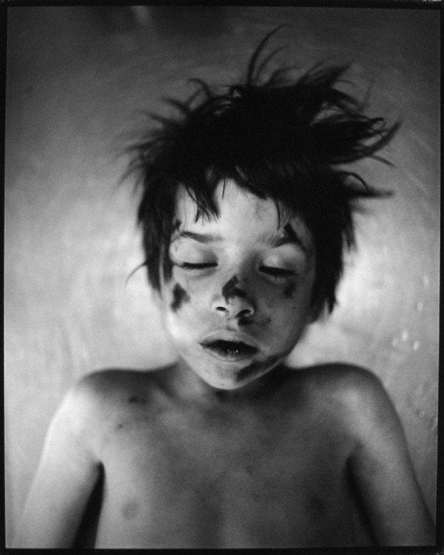 Jeffrey Silverthorne: Boy hit by car. Pressefoto Galerie Wolfsen
