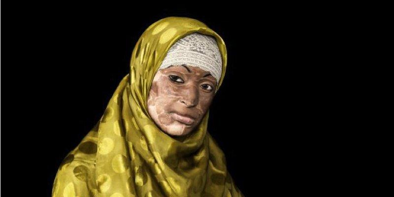 Fotoudstilling om ofre for syreangreb